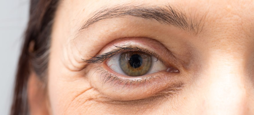 Bags Under Eyes: Symptoms and How to get rid of