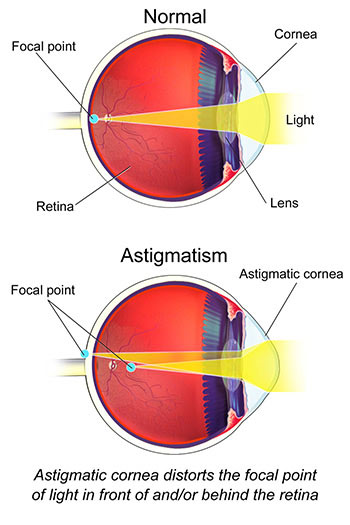 3e319cd0569 The Ultimate Guide to Astigmatism